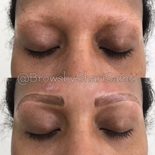 Restoring Medical Related Eyebrows